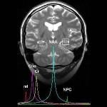 Técnicas de neuroimagen para la comprensión del autismo