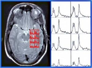 Espectroscopia RM