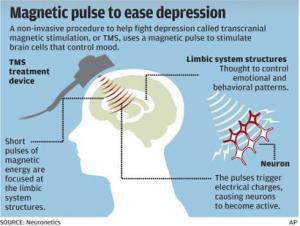 TMS-depressão