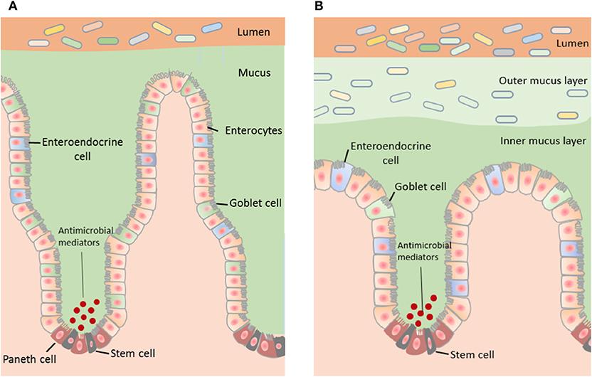 mucosa intestinal autismo